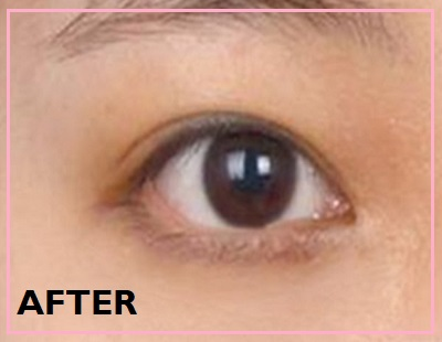 dark eye circles after