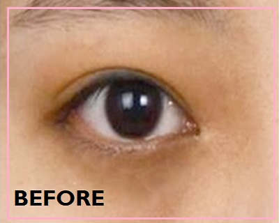 dark eye circles before