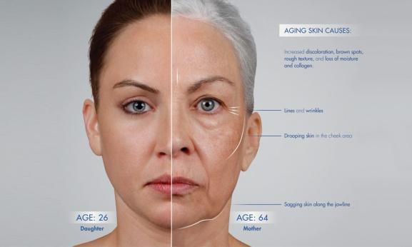 aging-skin-treatment