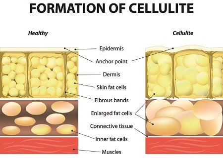 formation-of-cellulite-diagram-1519748717-min