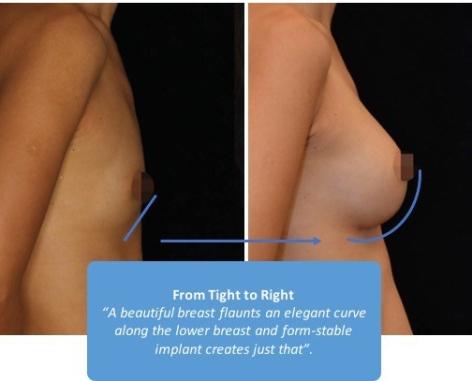 breast-curve1.jpg