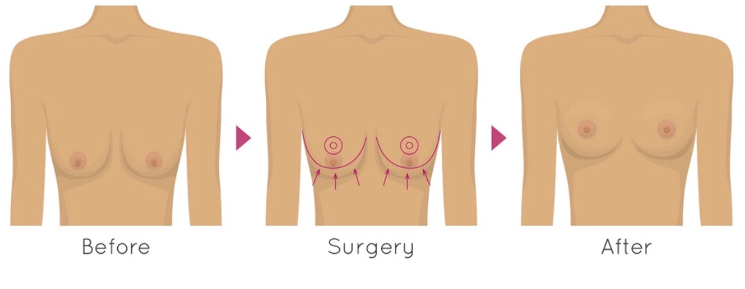 Breast Lift, or Mastopexy, elevates the breast to a higher level