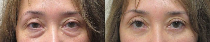 Lower blepharoplasty removes eyebags and saggy skin