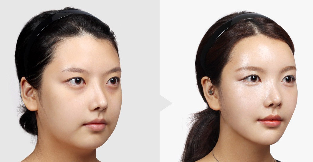 Buccal Fat Reduction with thread lift