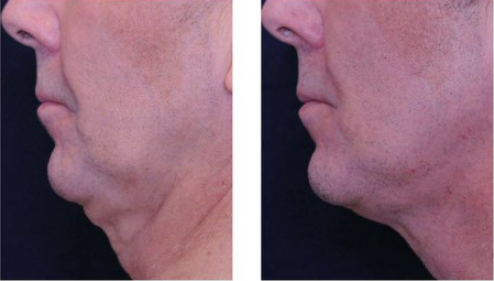 Profound treatment on double chin