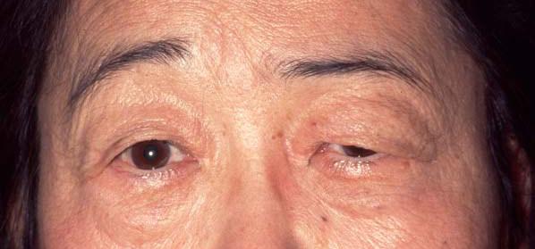 ptosis correction