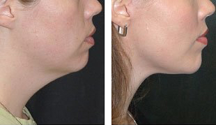 More Sculpted Neck After Endotine