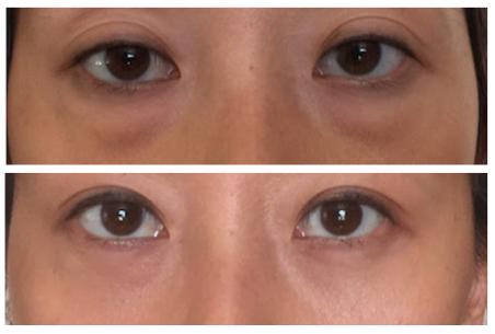 Scarless Eye Bag Removal