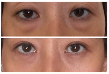 Scarless Eye Bag Removal