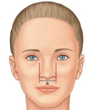The Ideal Nasal Base