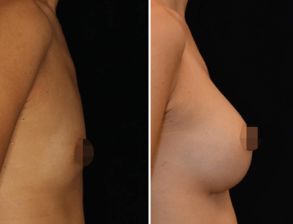 Breast augmentation, breast implants before and after