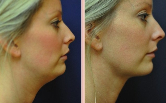 Vaser liposuction for double chin and saggy neck