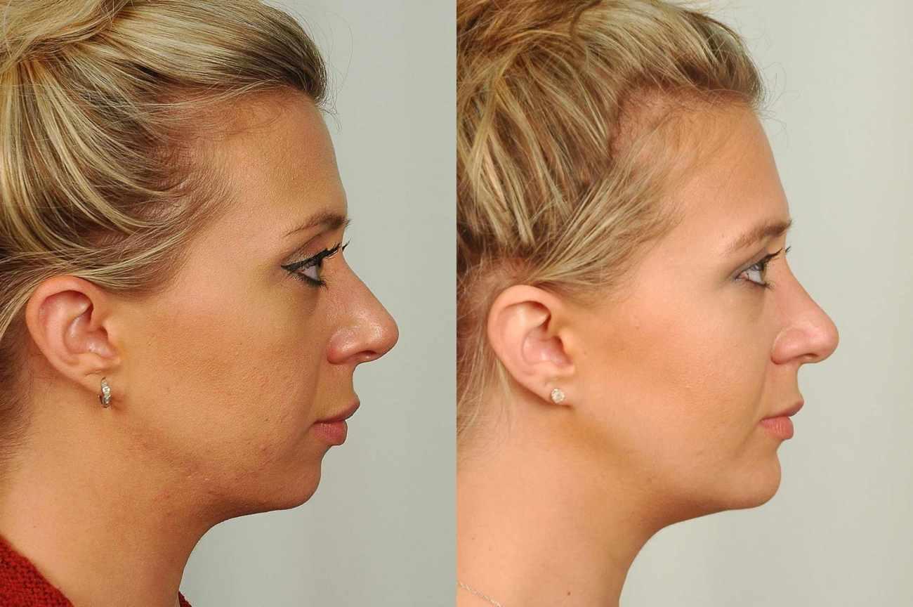 chin implant BA