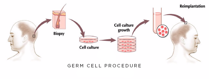 Germ Cell Procedure 1
