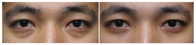 scarless eyebag surgery