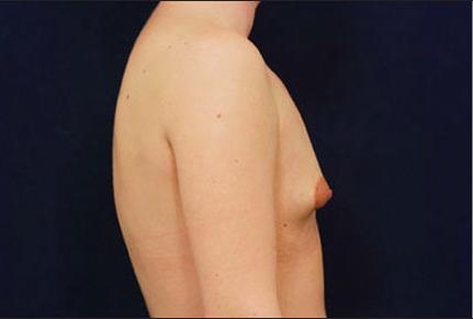 Tuberous breast