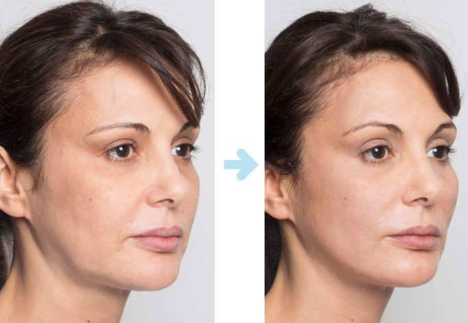 thread lift versus face lift