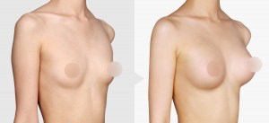 breast implant, breast augmentation