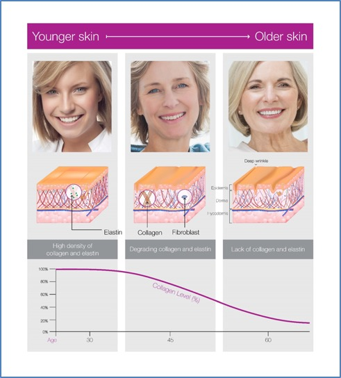 Profound lift reverses aging changes