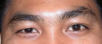 brow lift for brow ptosis