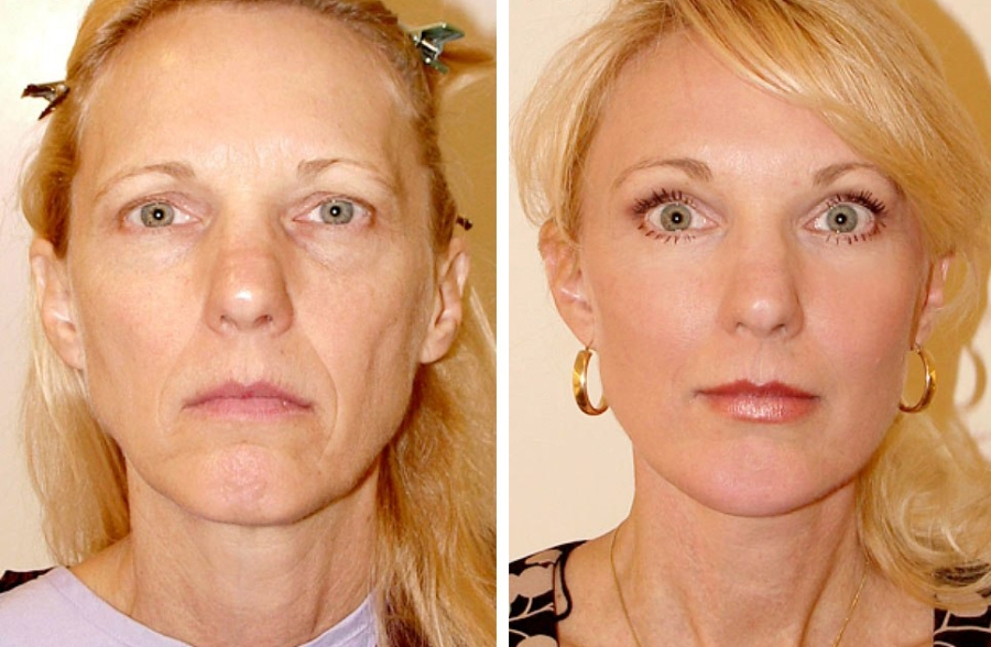 SMAS face lift with fat graft