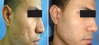 fat graft acne scars