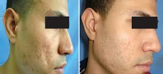 fat graft acne scars