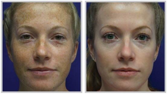 Sciton BBL freckles, sun spots, melanoma