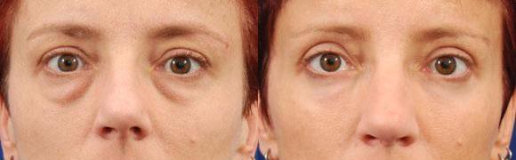 Lower eyelid surgery
