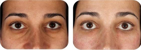 Fat graft eye bags filler to tear trough
