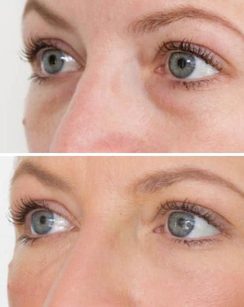 Fillers eyebags and eye circles
