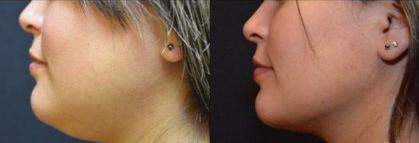 Double chin remova