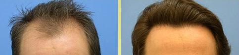 Full potential program for hair