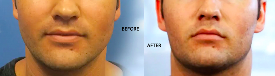 facial slimming with buccal fat removal surgery