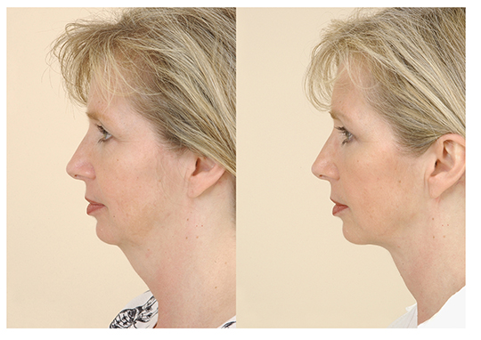 double chin neck lift