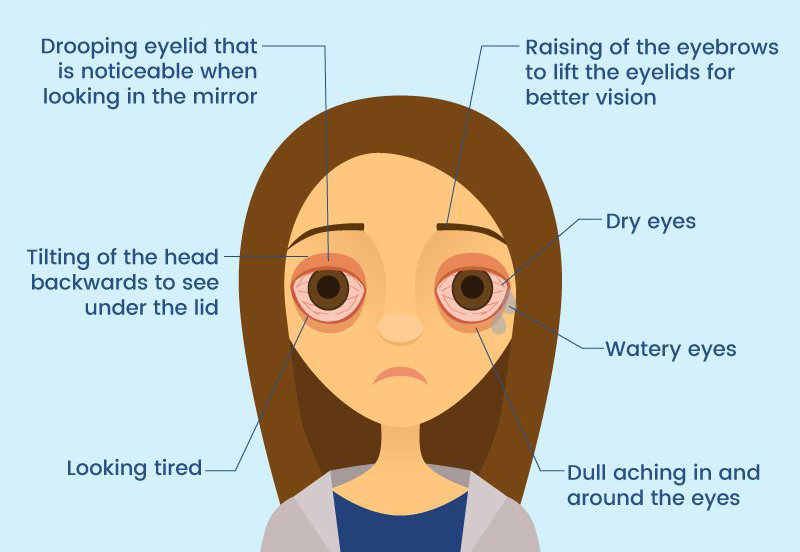 do I have ptosis