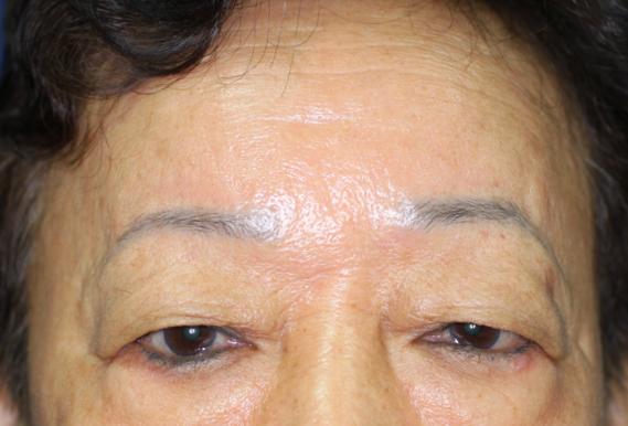 ptosis upper bephraoplasty