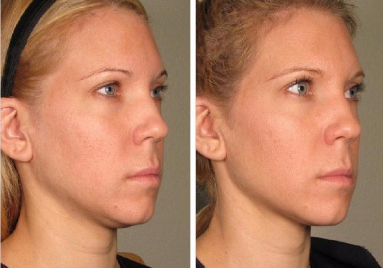Ultherapy neck skin tightening