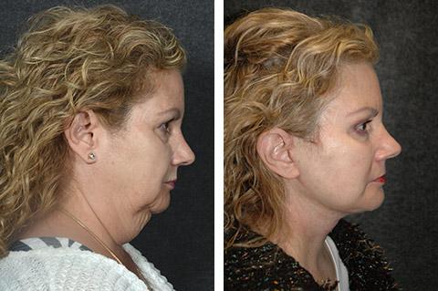 amazing-necklift-results