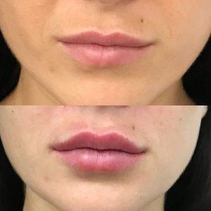 natural lip shape fillers