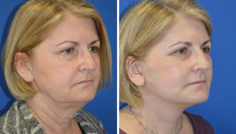 lower face lift