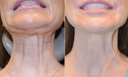 botulinum toxin for neck bands