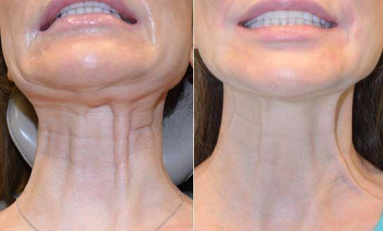 botulinum toxin for neck bands
