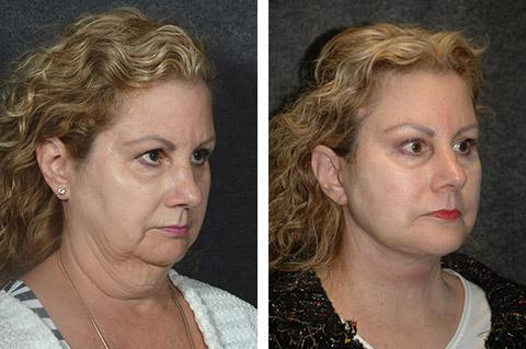 necklift-patient-photos