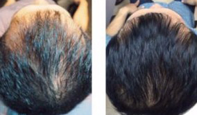 hair cloning