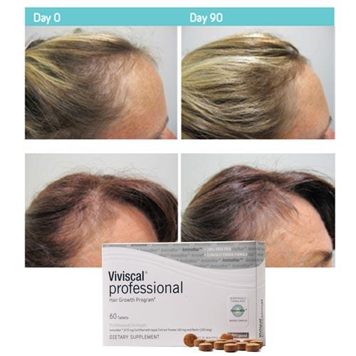 sw1 hair clinic