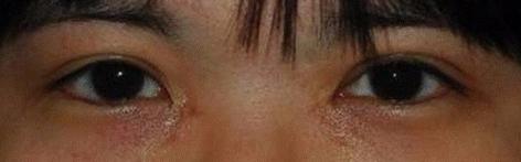 bad epicanthoplasty scars copy