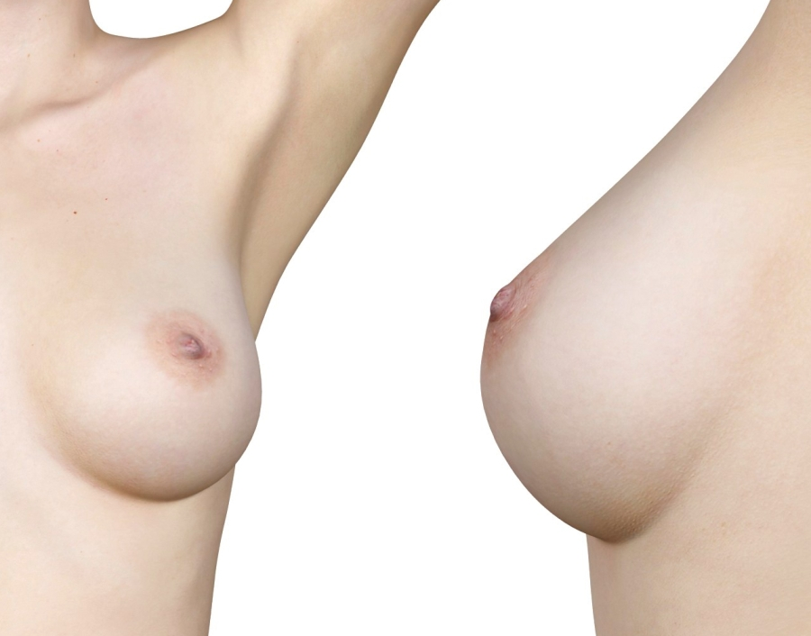 best breast implant shape