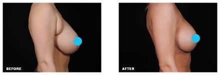liposuction armpit fat