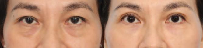 eyeball surgery